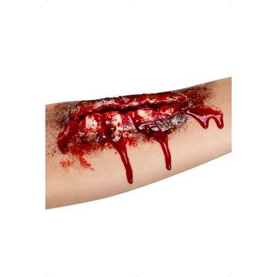 Skada - öppet sår arm